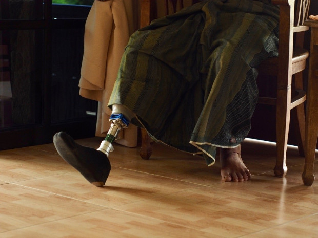 Taufik Abdul Halim wears a prosthetic leg during the BenarNews interview in Johor, Malaysia, Jan. 27, 2019. [Hadi Azmi/BenarNews]